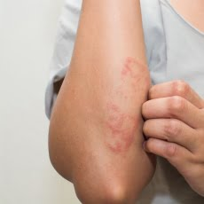 Eczema | Grace ER | 24 Hr. Urgent Care and much more