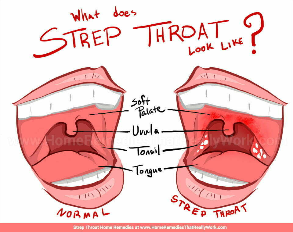 Signs of strep throat and adult