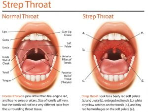 What Is Strep Throat Grace Er 24 Hr Urgent Care And Much More